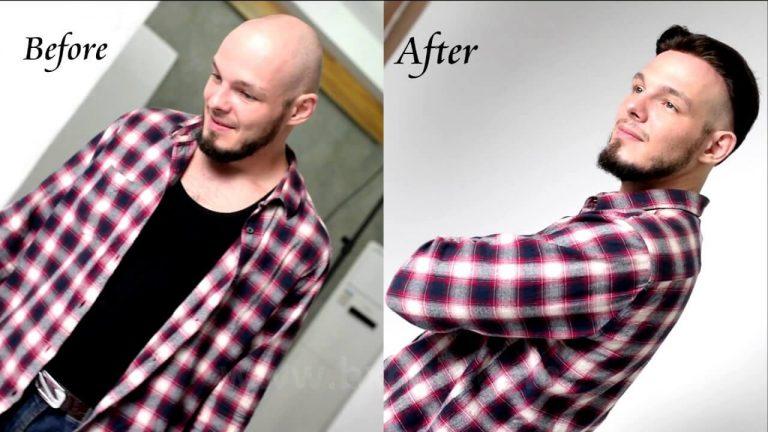 foto protesis capilar hombre